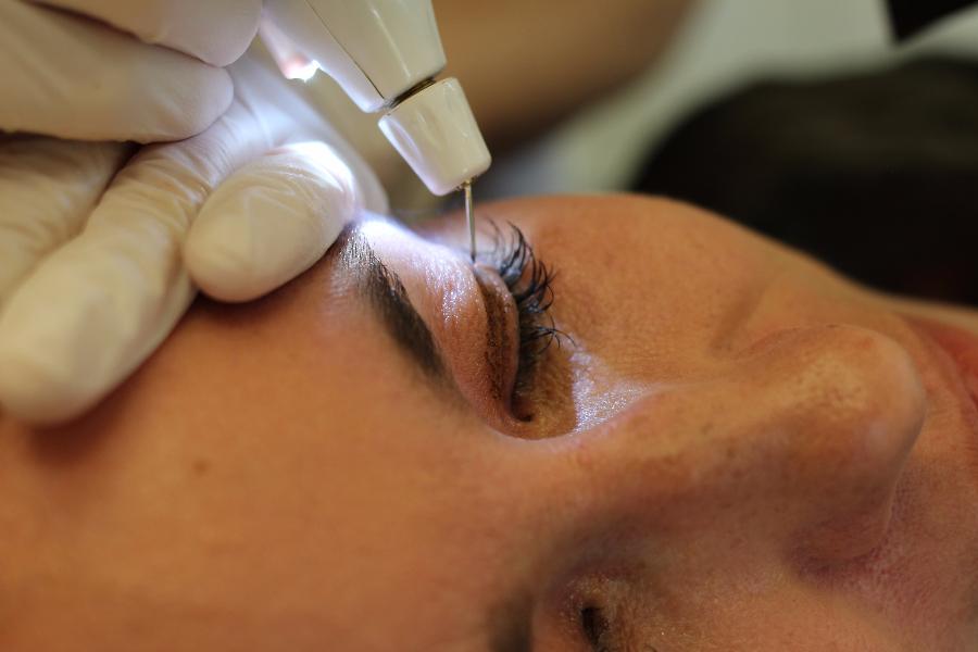 Augenlidstraffung mittels PlexR – Was ihr im Internet NICHT lest …
